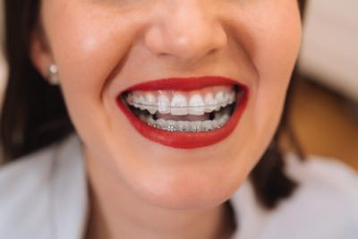 ortodoncia en Gálvez
